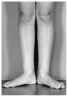 Clinical photograph showing external tibial torsion