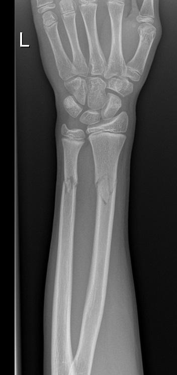 Radius And Ulnar Shaft Fractures Trauma Orthobullets