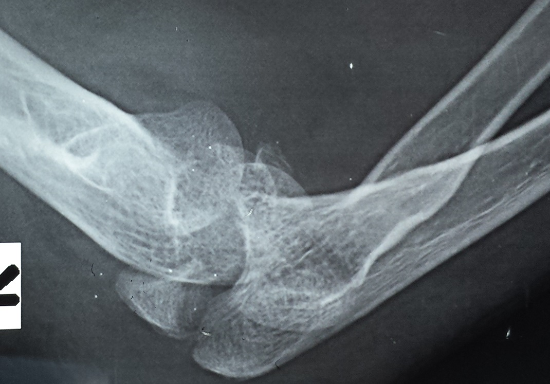 initial injury xrays