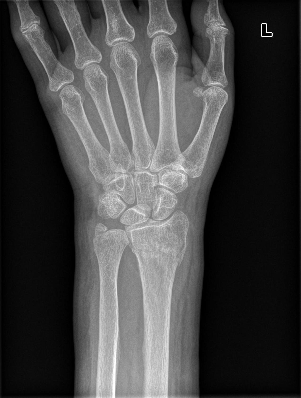 radial fracture - Vatoz.atozdevelopment.co