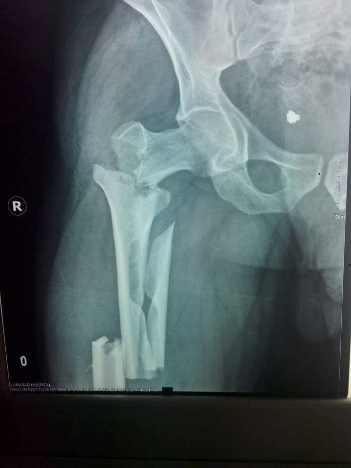 Femoral Neck Fractures - Trauma - Orthobullets.com