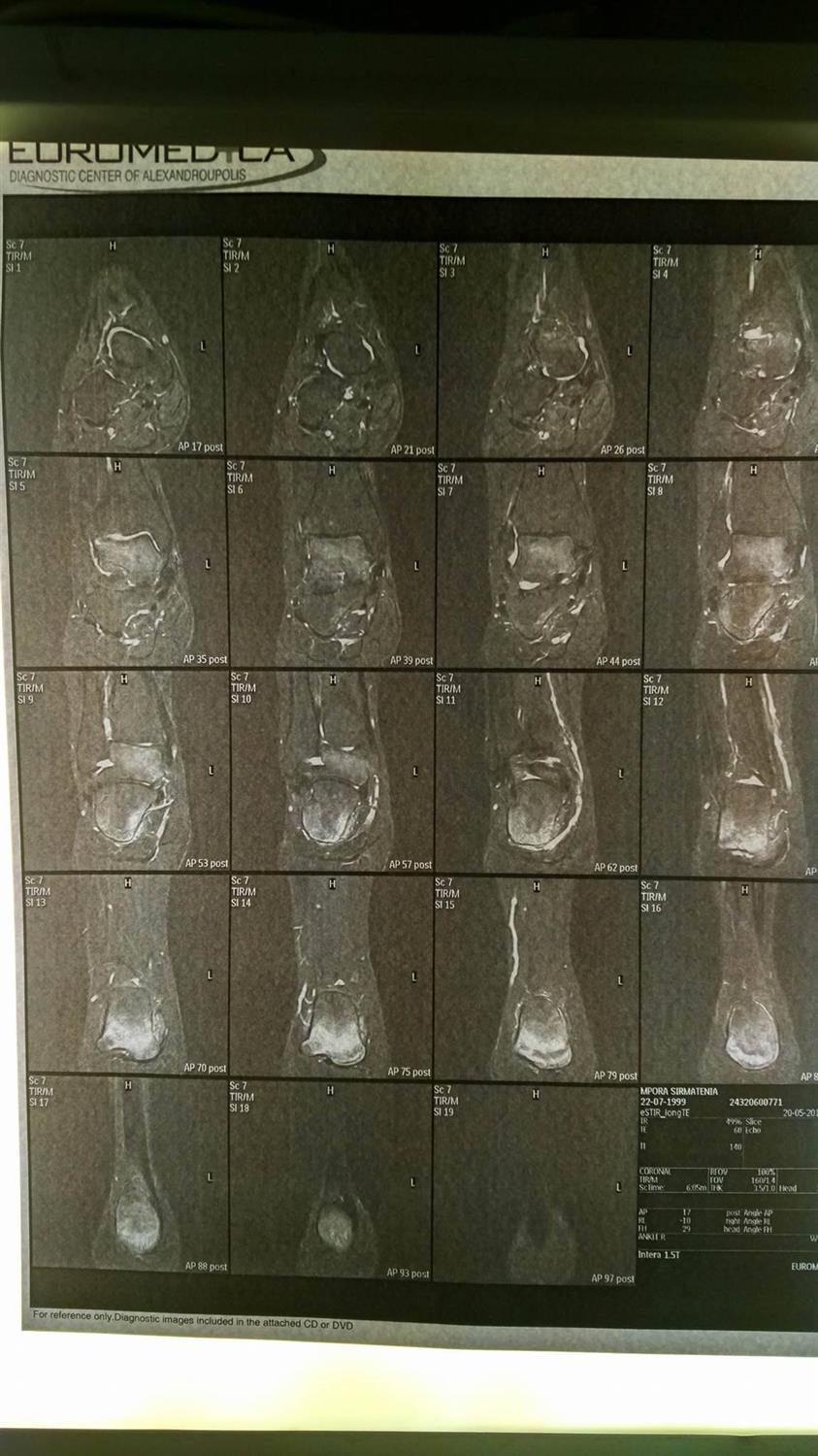 MRI Right Ankle (05/01/2016)