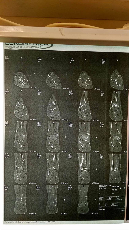MRI Left Ankle (01/01/2016)
