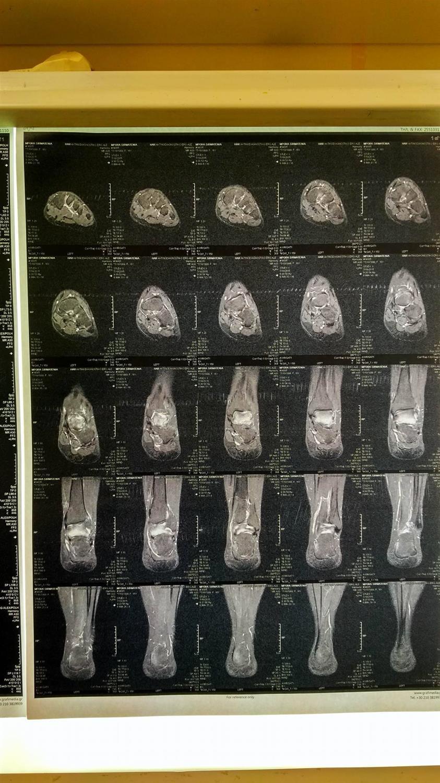 MRI left Ankle (10/01/2015)