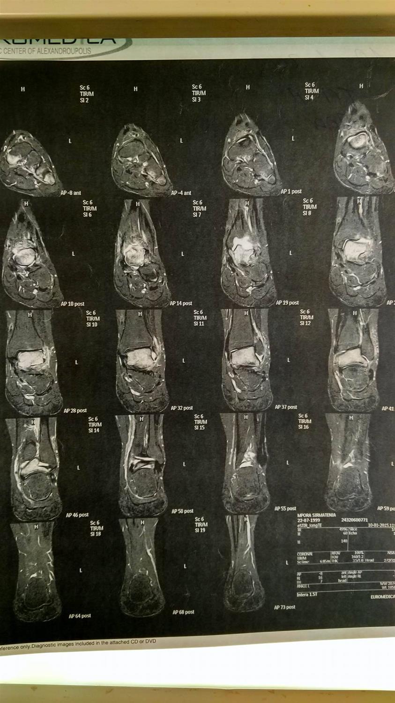 Left Ankle MRI(01/01/2015)