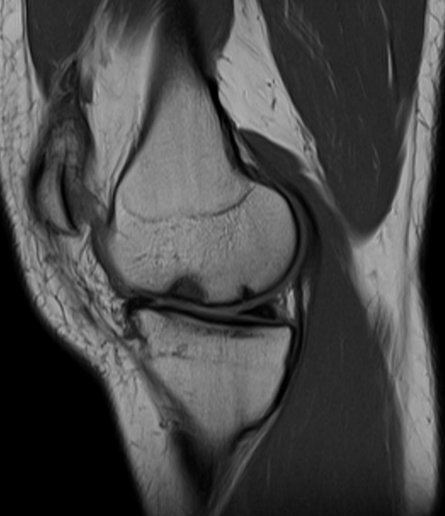 MRI - SAGITTAL 1 - RIGHT KNEE