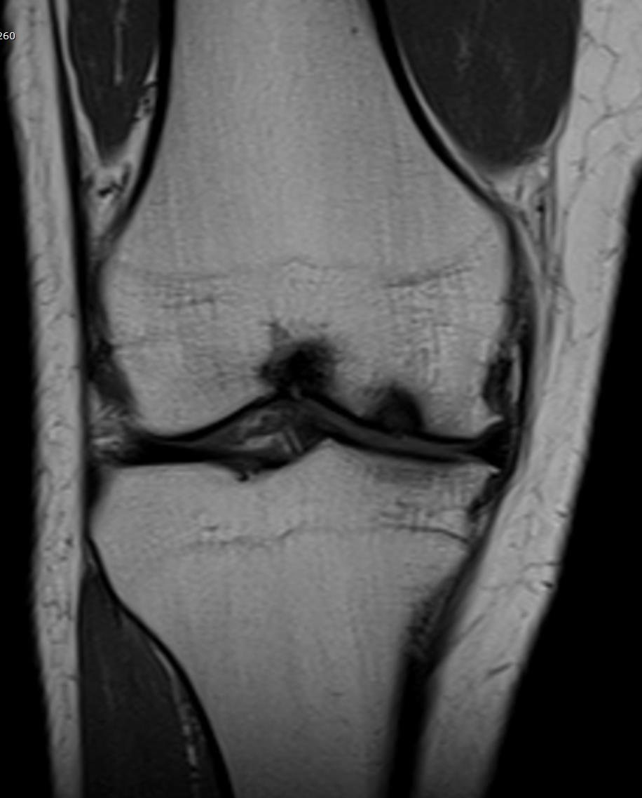 MRI - CORONAL - RIGHT KNEE