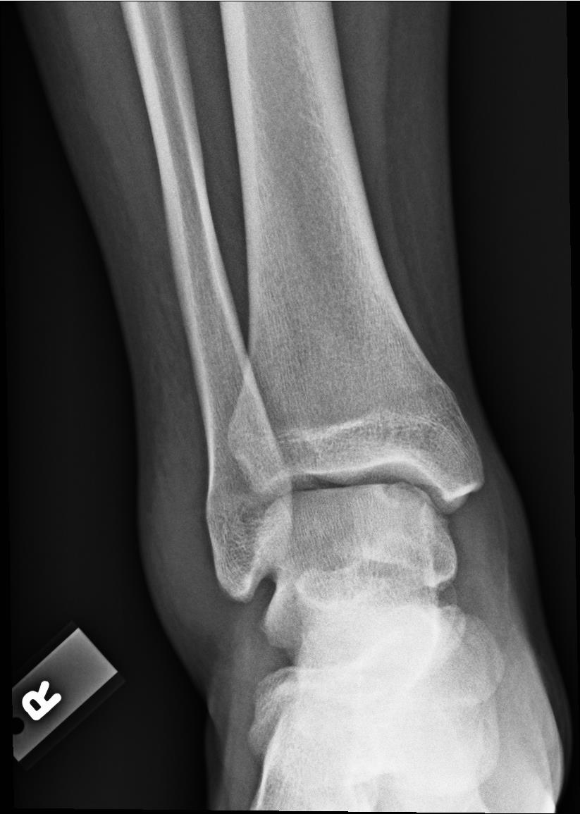 XRAY - AP Right Ankle