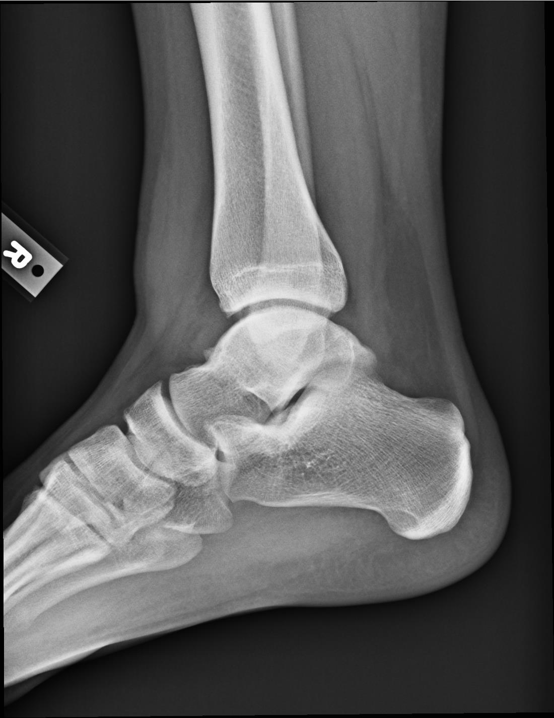 XRay - Lateral Right ankle