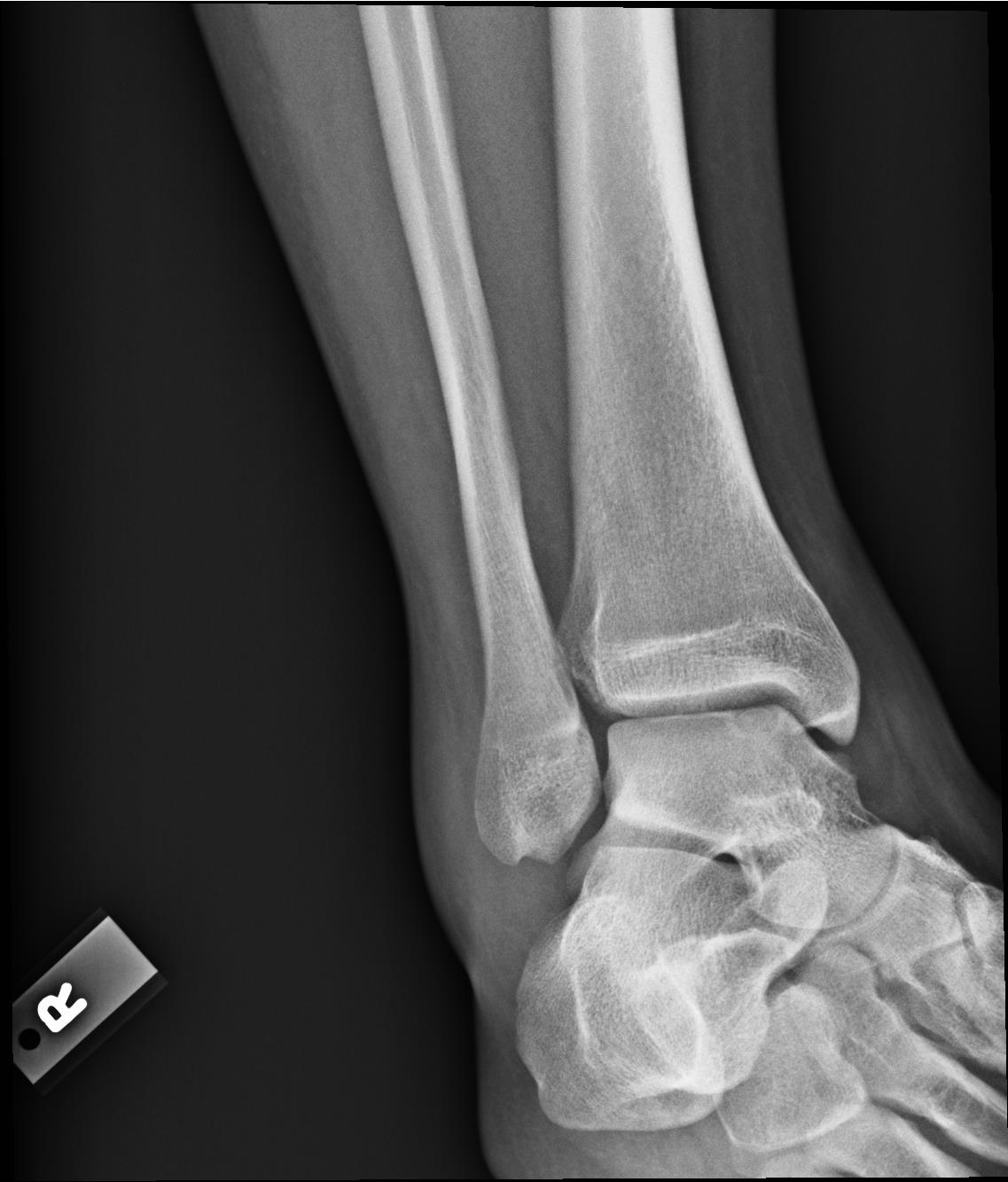 XRay - Mortise Right ankle