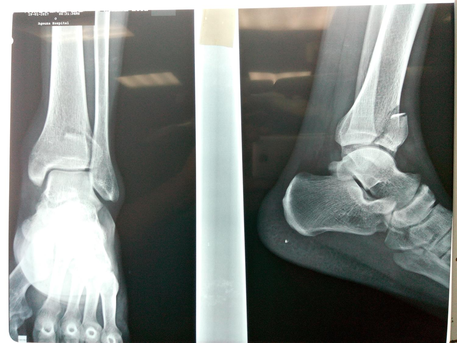 AP and Lateral views of left ankle