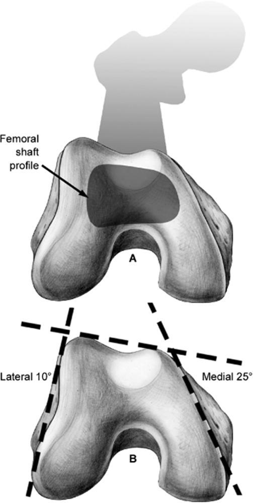 Distal Femur Fractures - Trauma - Orthobullets.com