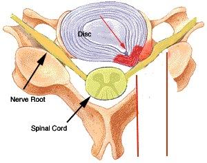 Cervical Radiculopathy - Spine - Orthobullets.com