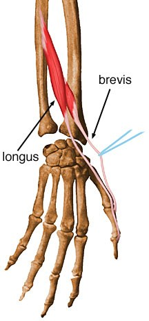 http://upload.orthobullets.com/topic/10038/images/extensor-pollicis-brevis.jpg