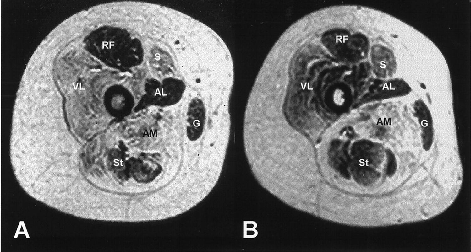 http://upload.orthobullets.com/topic/10058/images/le mri cross section.jpg