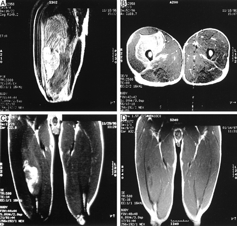 http://upload.orthobullets.com/topic/10058/images/quad contusion mri_moved.jpg