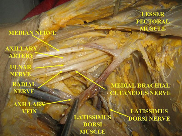 http://upload.orthobullets.com/topic/1008/images/brachial plexus dissection.jpg