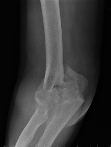 http://upload.orthobullets.com/topic/1017/images/distal humerus 1_moved.jpg