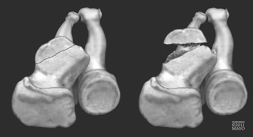 http://upload.orthobullets.com/topic/1020/images/anteromedial facet fracture 3d ct.jpg