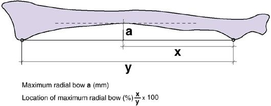 http://upload.orthobullets.com/topic/1025/images/radial bow.jpg