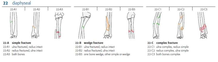 http://upload.orthobullets.com/topic/1029/images/ota classification of radius and ulna.jpg