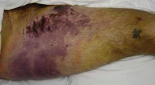 http://upload.orthobullets.com/topic/1030/images/morel-lavallee lesion.jpg
