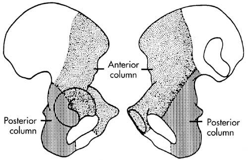 http://upload.orthobullets.com/topic/1034/images/acetabulum columns.jpg