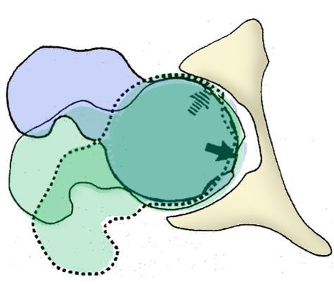 http://upload.orthobullets.com/topic/1034/images/mechanism.jpg