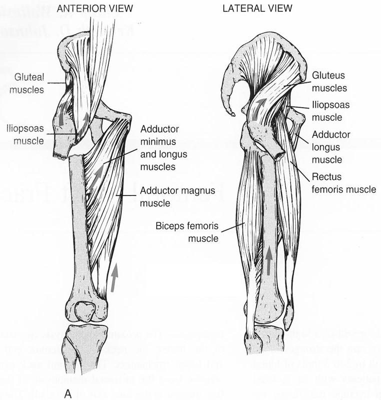 http://upload.orthobullets.com/topic/1040/images/biomechanics_of_femoral_shaft_fracture.jpg