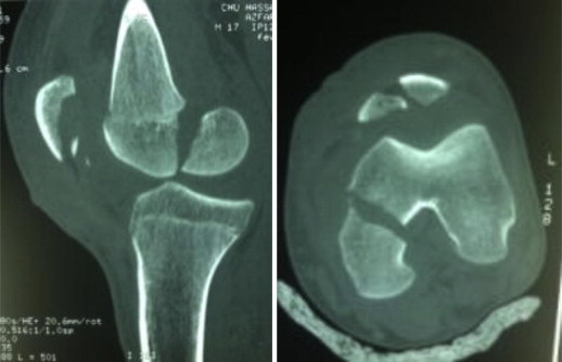 http://upload.orthobullets.com/topic/1041/images/hoffa fracture.jpg