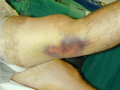 http://upload.orthobullets.com/topic/1043/images/Clinical photo - recurvatum (emedicine)_moved.jpg