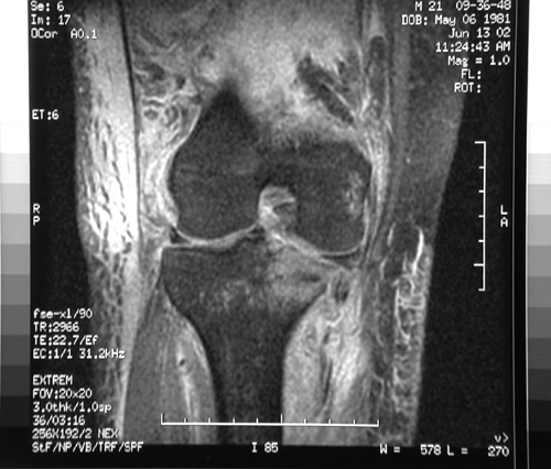 http://upload.orthobullets.com/topic/1043/images/MRI - coronal - knee dislocation (emedicine)_moved.jpg