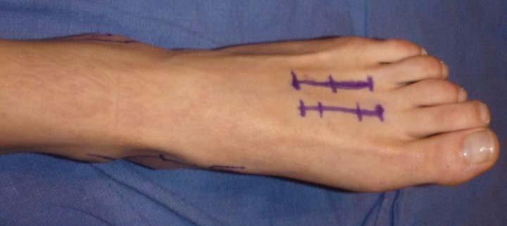 http://upload.orthobullets.com/topic/1065/images/dorsal incisions.jpg