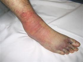 http://upload.orthobullets.com/topic/1065/images/foot compartment syndrome.jpg