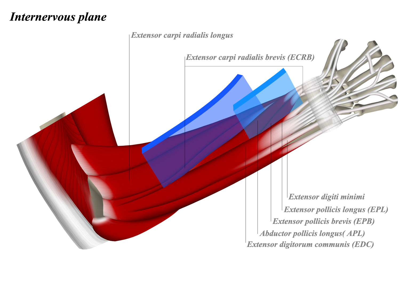 http://upload.orthobullets.com/topic/12011/images/plane.jpg