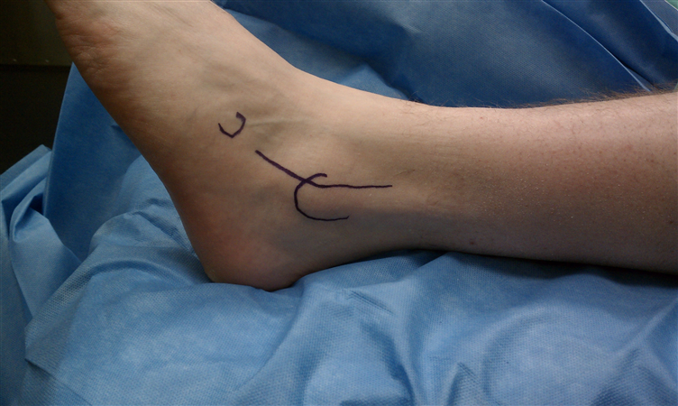http://upload.orthobullets.com/topic/12042/images/lateral ankle exposure 1a.jpg