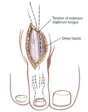 http://upload.orthobullets.com/topic/12052/images/incise deep fascia.jpg