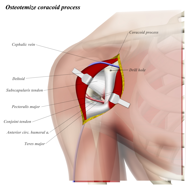 http://upload.orthobullets.com/topic/12061/images/5.jpg