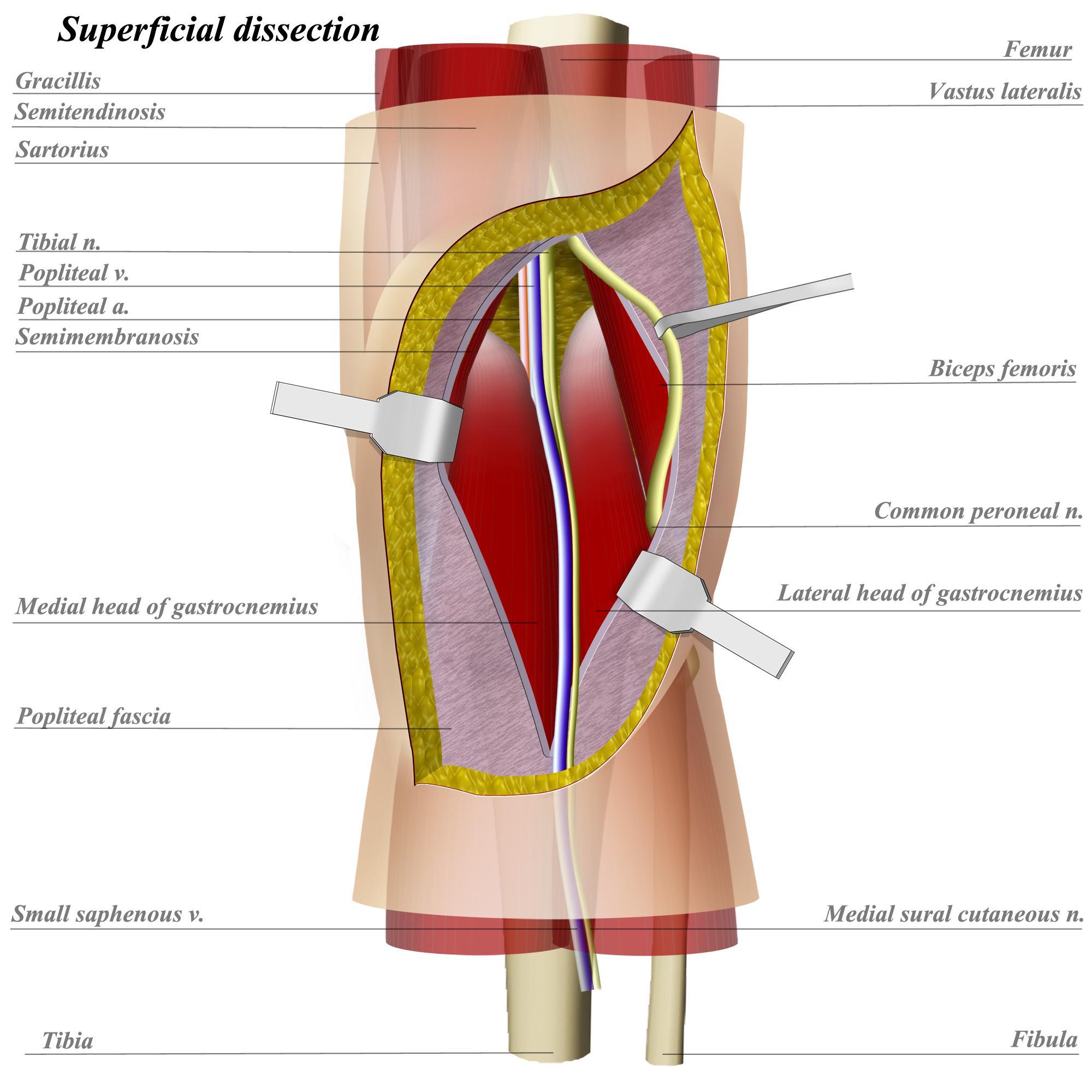 Sural nerve Anatomy Orthobullets - dinosauriens.info