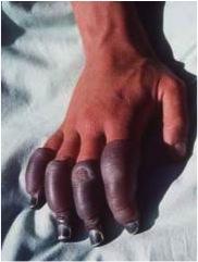 http://upload.orthobullets.com/topic/12105/images/hemorrhagic.jpg