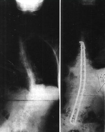 http://upload.orthobullets.com/topic/2057/images/xray---Luque-Technique_moved.jpg