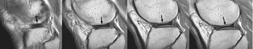 "Sagital MRI images in the lateral compartment with 3 or more slices with the ""bowtie"" sign is indicative of a discoid meniscus."