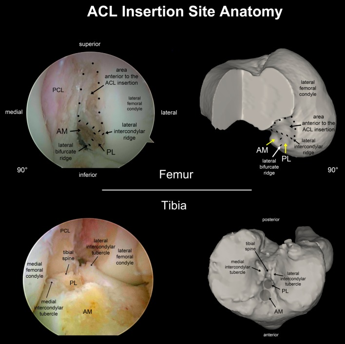http://upload.orthobullets.com/topic/3008/images/acl_anatomy_2.jpg