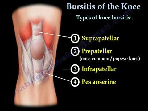 Prepatellar Bursitis Housemaids Knee