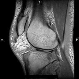 Saggital MRI showing patella tendon rupture