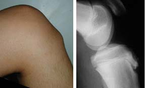 http://upload.orthobullets.com/topic/3029/images/osgood-schlatter_moved.jpg