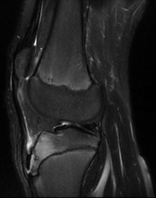http://upload.orthobullets.com/topic/3029/images/t2 mri.jpg