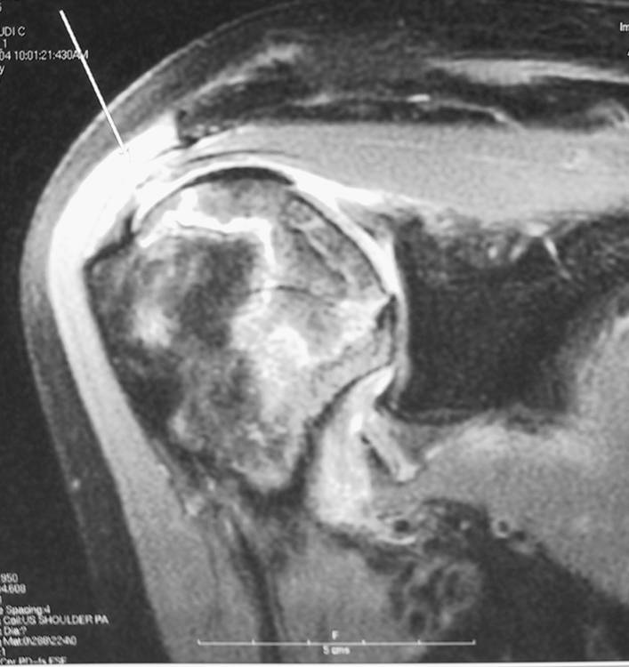 http://upload.orthobullets.com/topic/3060/images/avn mri.jpg