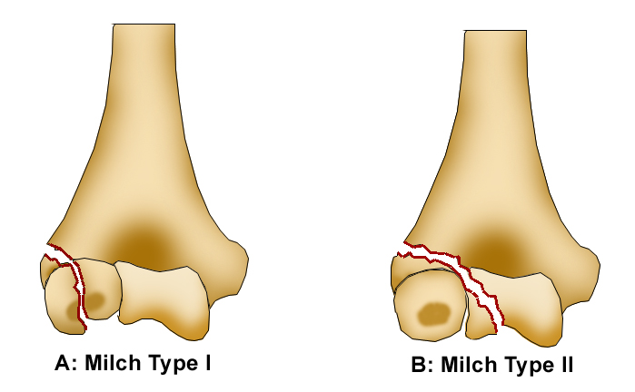 http://upload.orthobullets.com/topic/4009/images/milch classification.jpg
