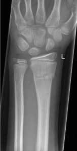 Pediatric distal radius fracture radiograph